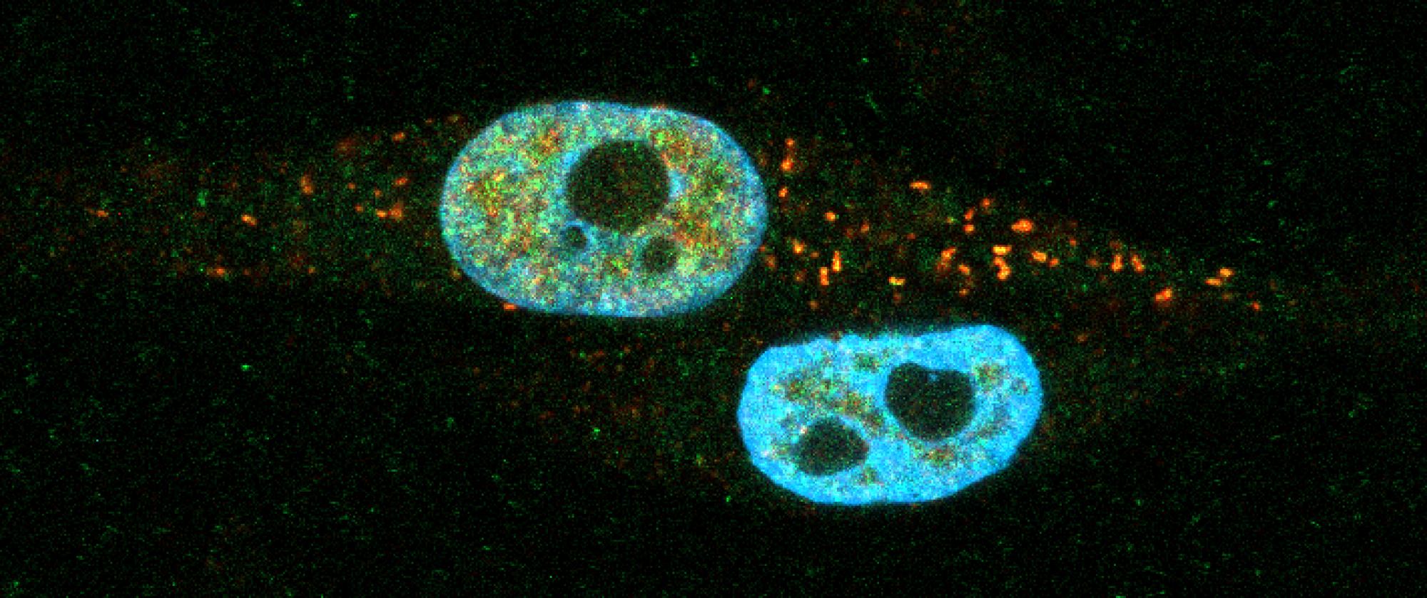Latonen Cancer Stress Biology